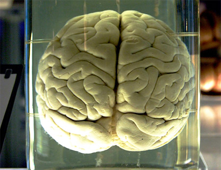 Brain in Jar photo